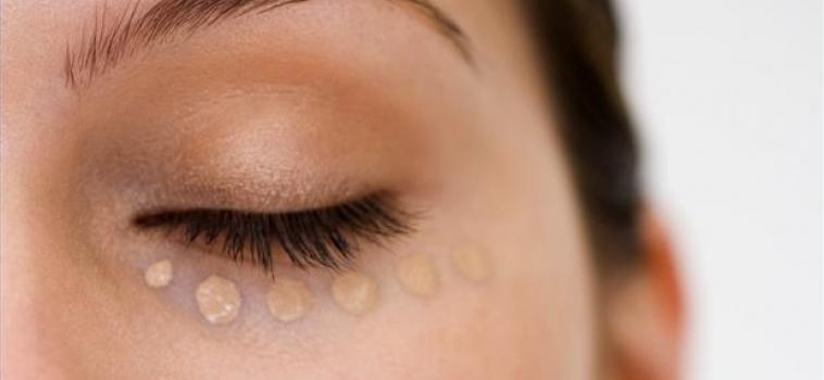 Como disfarçar as olheiras rapidamente
